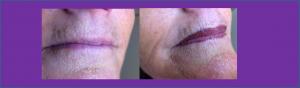 levres avant après maquillage permament 2